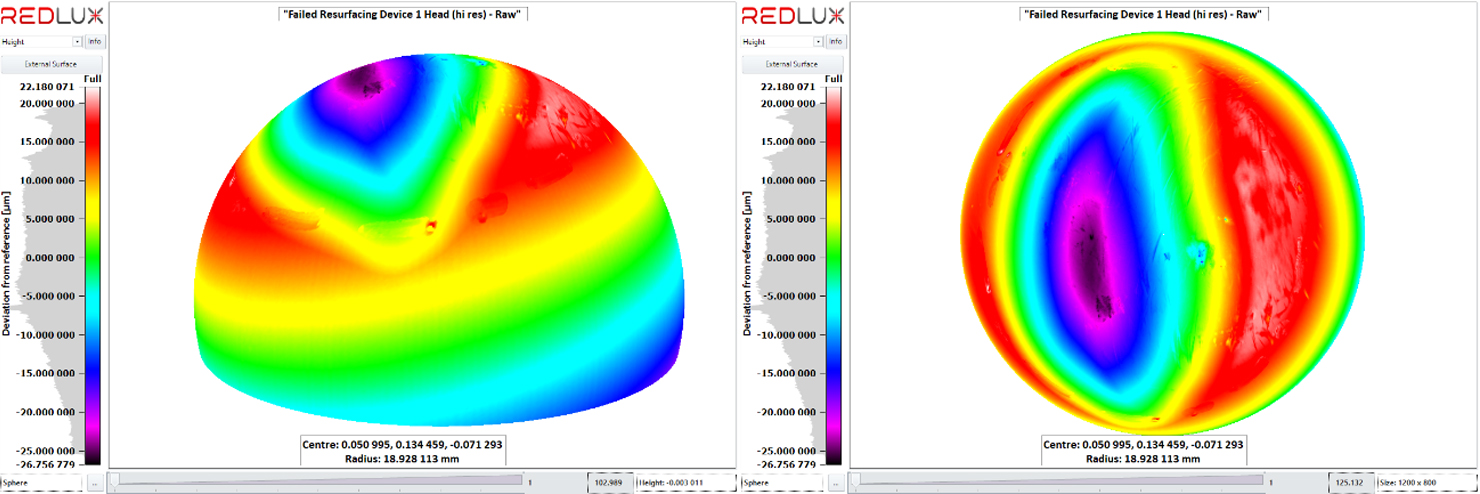 Raw data set after initial sphere fit